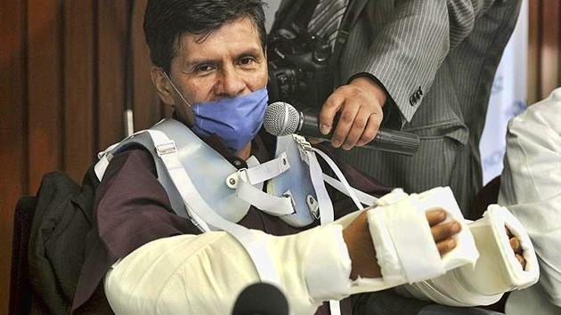 México realiza su primer trasplante de brazos