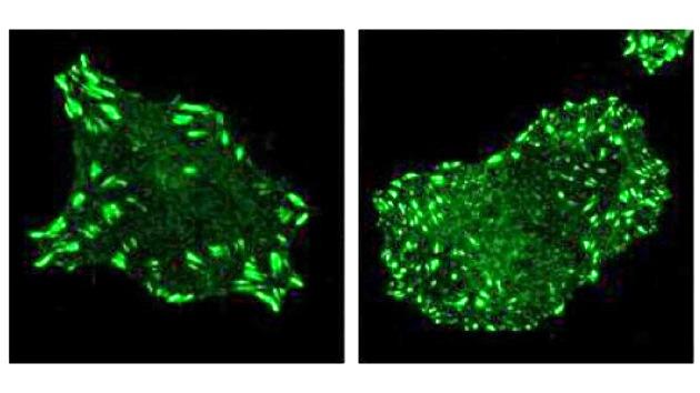 Descubren un gen que detiene la propagación del cáncer de pulmón