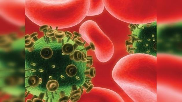 Prevén 60.000 nuevos casos de SIDA para este año en Rusia
