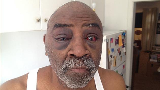 Fotos: Un anciano sordo, golpeado por policías en EE.UU. por no oír sus órdenes