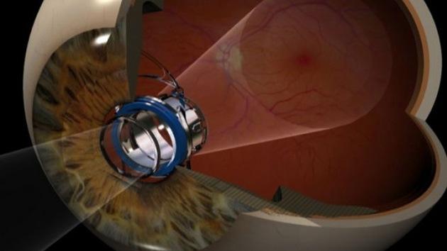 Crean un telescopio ocular para devolver la visión a personas con degeneración macular