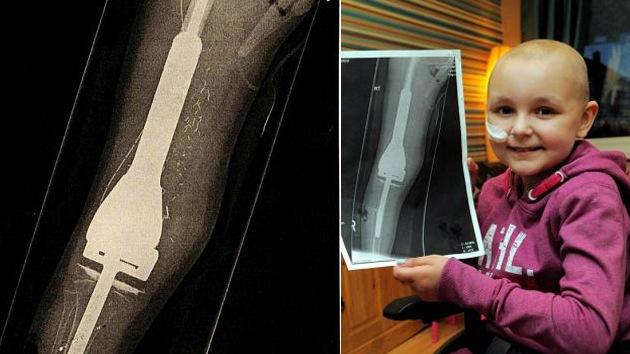Una niña camina por primera vez tras reconstruir su pierna con 'huesos' de acero