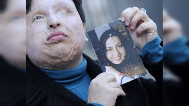 Aplazan la sentencia del hombre que desfiguró a una mujer con ácido en Irán