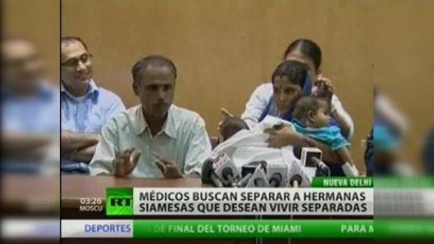 Cirujanos discuten separación de siamesas indias