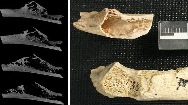Diagnostican el primer tumor humano de 120.000 años