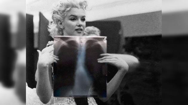 Venden radiografías de Marilyn Monroe en 45,000 dólares