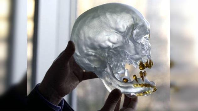 Se realiza el primer trasplante de cara en Bélgica