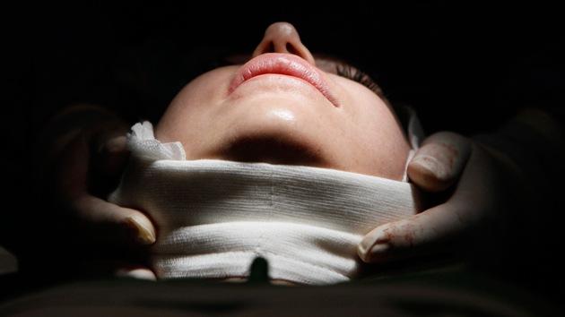 Niñas bajo el bisturí: la obsesión por las cirugías plásticas en Argentina