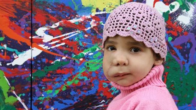 El arte que cura: una niña con un tumor en la cara recaudará dinero exponiendo sus obras