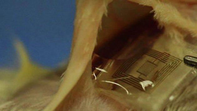 Crean implantes electrónicos 'solubles' en el cuerpo humano