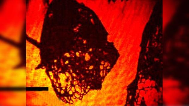 Un nuevo microscopio con hologramas que detecta bacterias