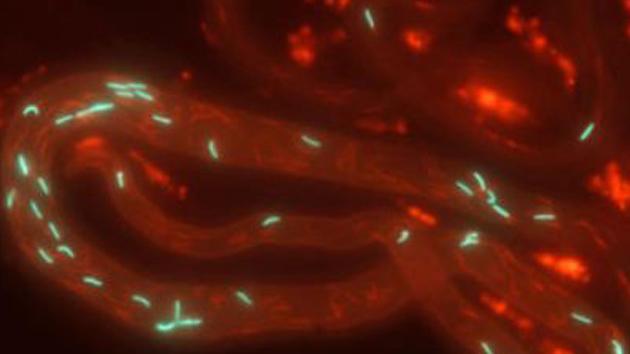 Primeiro vídeo 3D movendo esperma