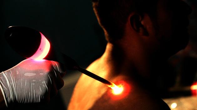 Luces que apagan el dolor: Científicos logran efectos anestésicos con terapias luminosas