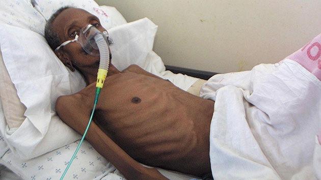 Un brote de tuberculosis resistente a todos los medicamentos se propaga por Sudáfrica