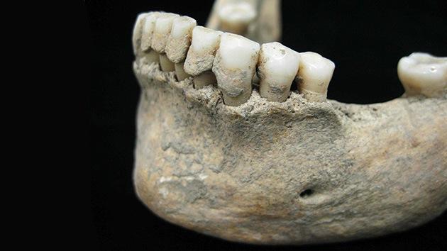 Descubren un tesoro antropológico bajo la placa dental de hombres medievales