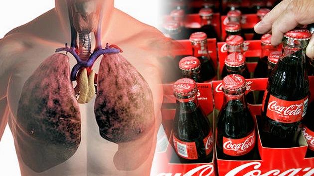 Adicto a Coca-Cola fallece con los pulmones hinchados cuatro veces más de lo normal