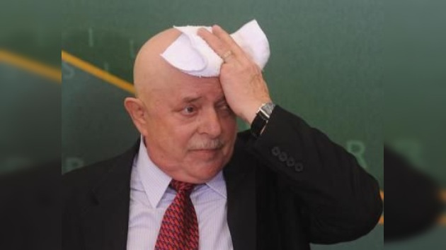 Hospitalizan a Lula da Silva por sufrir deshidratación
