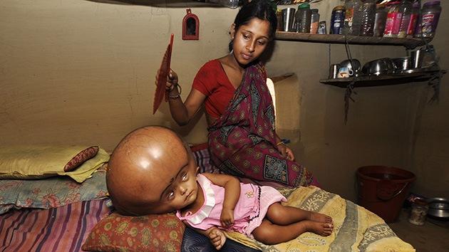 Niña india con la cabeza hinchada, a la espera de un milagro