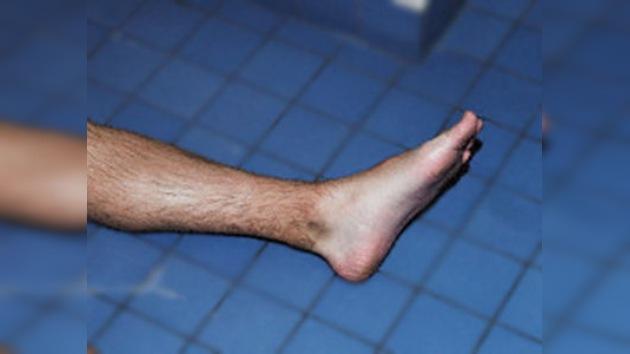 Una estadounidense, acusada del robo de una pierna mutilada en un accidente