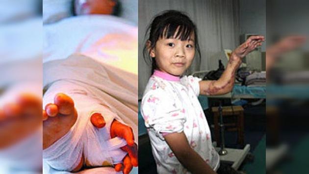 Unos cirujanos chinos salvaron el brazo de una niña al coserlo a su pierna