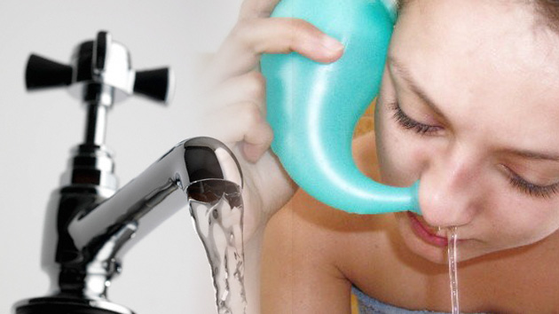 El agua del grifo de EE.UU. podría contener una ameba letal