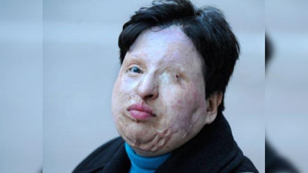 La mujer cegada con acido sulfúrico en Irán no aplicará la ley del talión