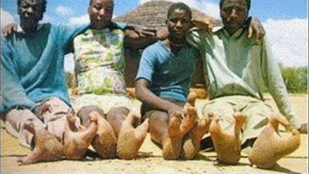 Miembros de tribu africana presentan deformación en sus pies similar a las patas de avestruz