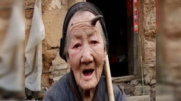 A una anciana china de 101 años le crece un cuerno de seis centímetros