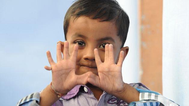 India: Un niño con 25 dedos se convierte en una celebridad en su pueblo