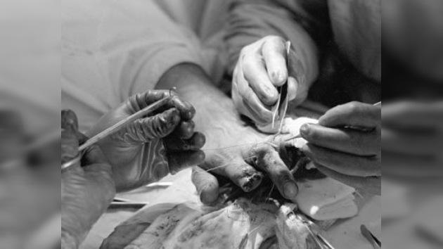 El milagro de la microcirugía rusa