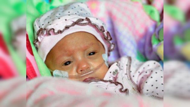 Un milagro de peso: dan de alta al bebé prematuro que vino al mundo con 270 gramos