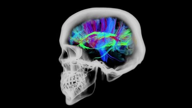 ¿Qué le ocurre al cerebro 30 minutos antes de la muerte?