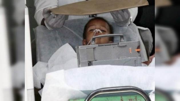 El niño brasileño con agujas en el cuerpo está fuera de peligro