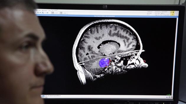 La orientación política: tendría que ver más con el cerebro que con el corazón