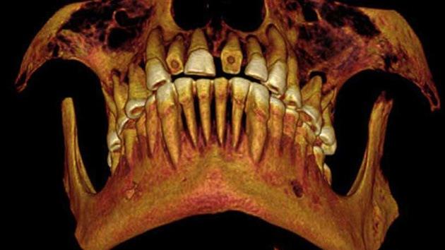 Caries, la otra 'plaga' de Egipto: hallan una momia de hace 2.100 años con empastes