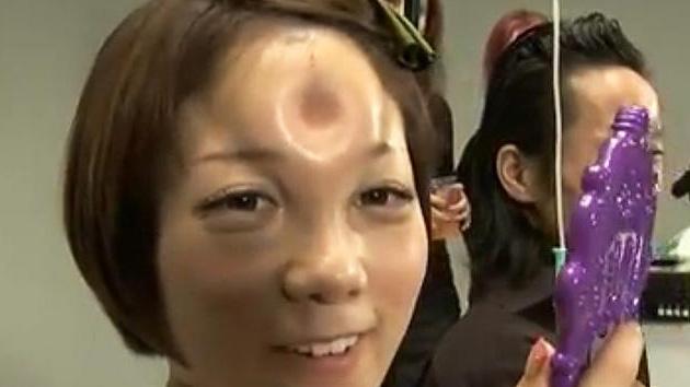 La moda que se vende como rosquillas: Deformarse la cara con bultos circulares