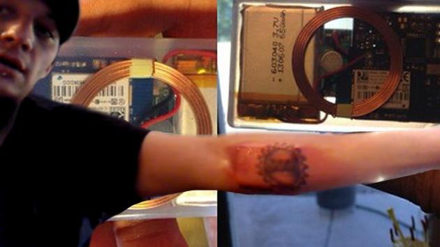 Con la informática a flor de piel: un joven de EE.UU. se implanta un chip en el brazo