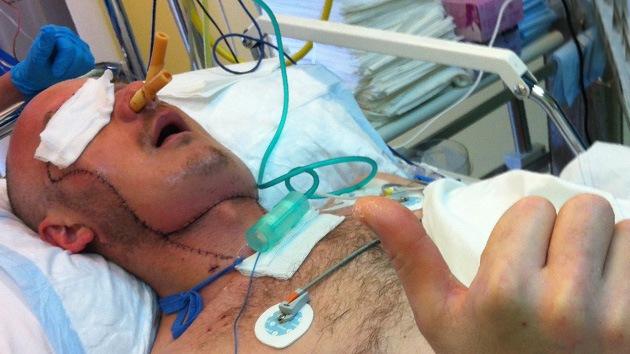 Polonia realiza el primer trasplante total de cara a un hombre accidentado en una cantera