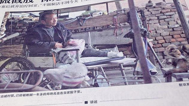 Un hombre se amputa una pierna en China por falta de recursos