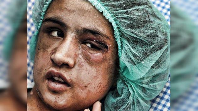 Rescatan a una niña afgana torturada por su marido por negarse a prostituirse