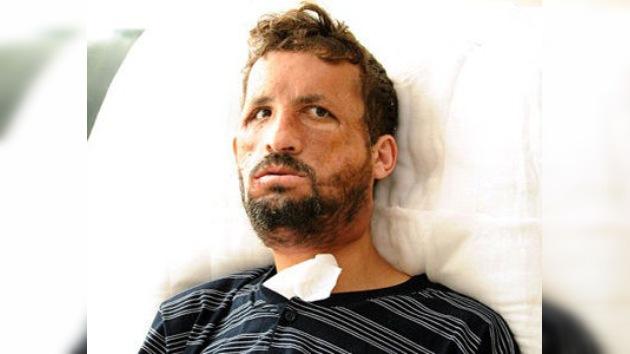 Turquía pone rostro al transplante de cara: el primer paciente operado se mira al espejo
