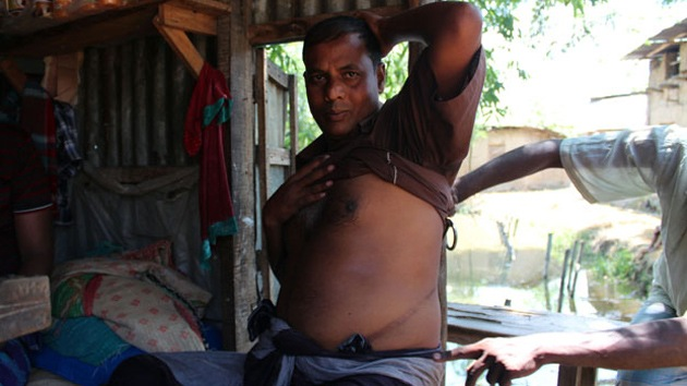Bangladesíes pobres se ven obligados a vender órganos para pagar sus deudas