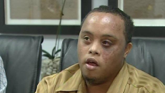 Un joven con síndrome de Down, golpeado por un policía en EE.UU.