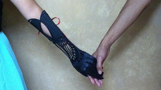 Un estudiante crea una elegante prótesis para su compañera de clase