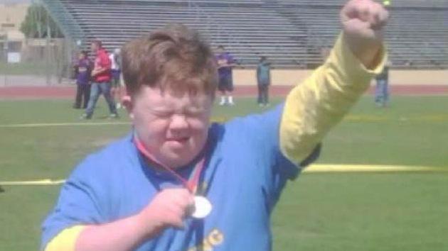 No se puede volar en primera en EE.UU. con síndrome de Down
