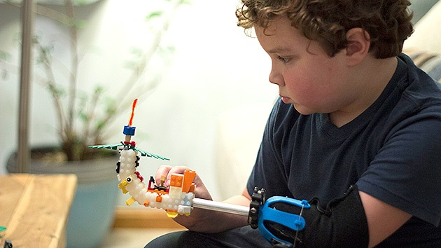 Un niño de 9 años diseña su propia prótesis con piezas de Lego