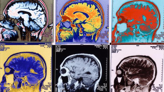 Ciencia ¿Tiene cerebro Mac o PC?