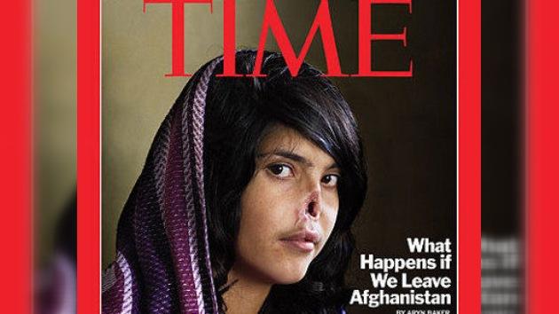 La foto de una joven afgana desfigurada triunfa en el World Press Photo