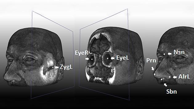Los cinco genes que 'dibujan' la cara humana