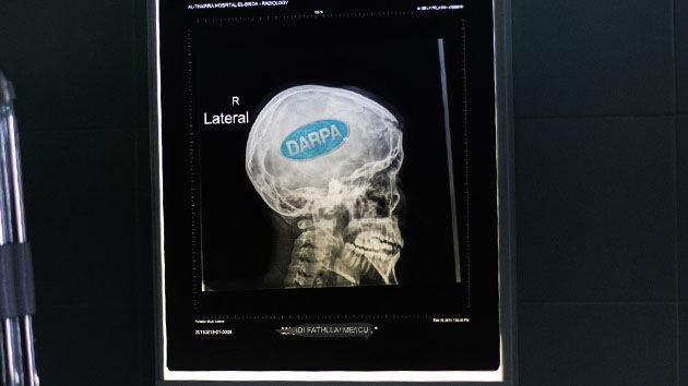 El Pentágono desarrolla implantes cerebrales para restaurar recuerdos